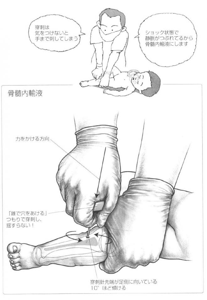骨髄内輸液