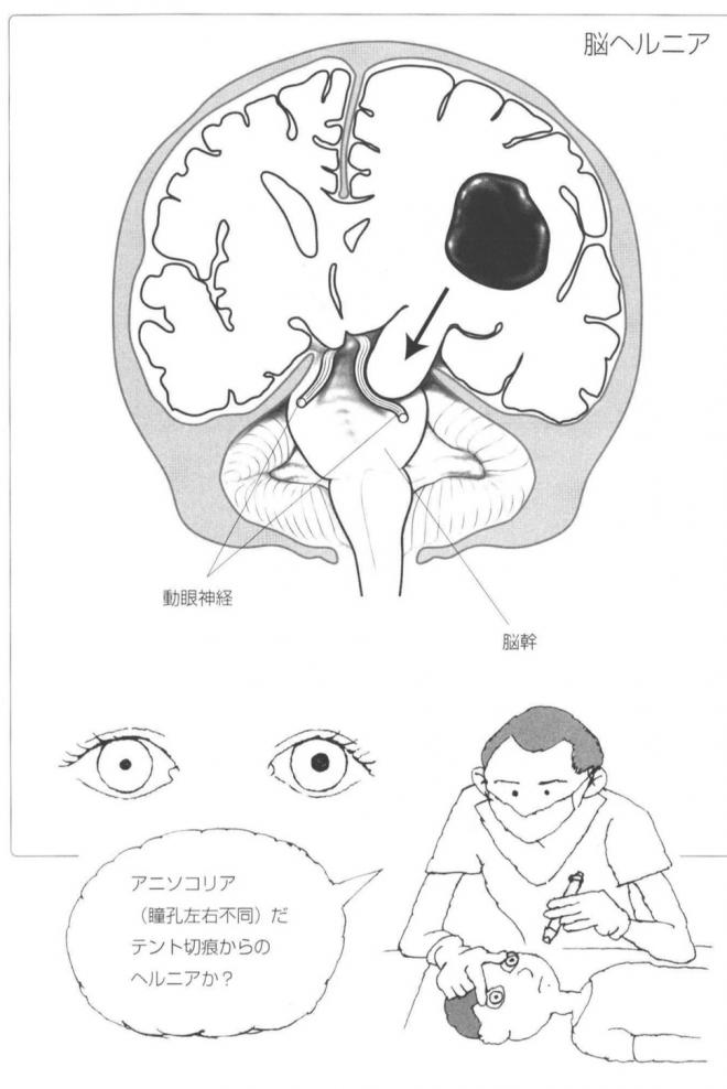 脳ヘルニア